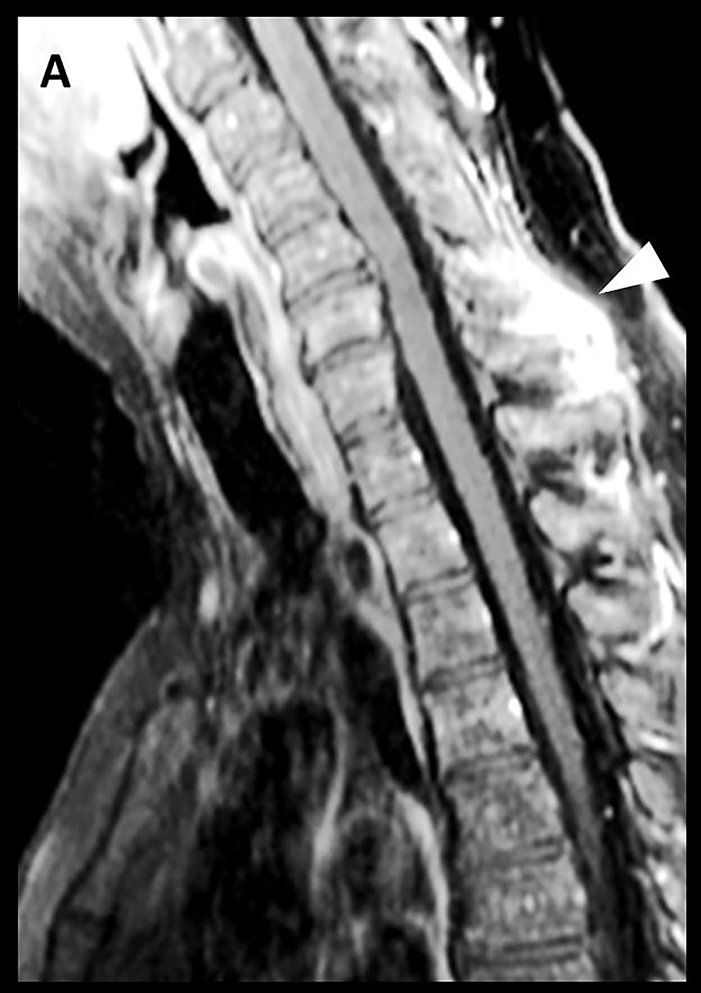 Magnetic-resonance-imaging-(MRI)-with-contrast-of-the-cervical-spine,-sagittal-view-(A)