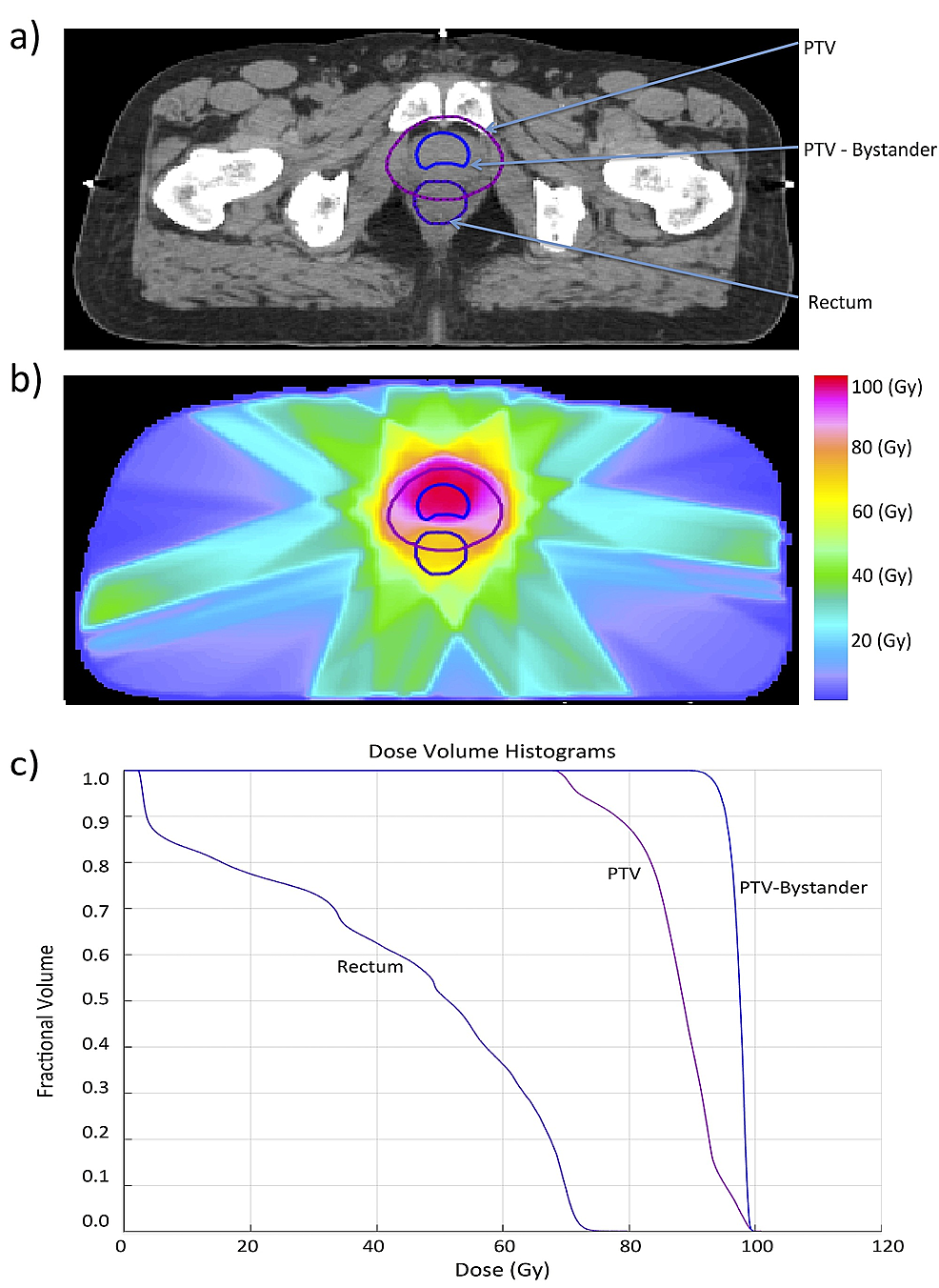 Biological-optimization-of-a-prostate-cancer-case