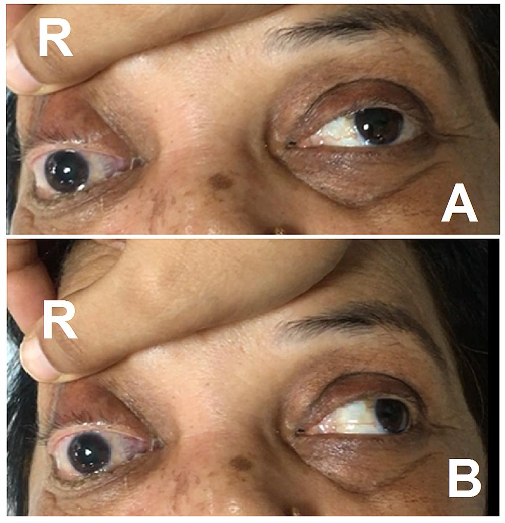 Right-eye-disorder-on-eye-examination.