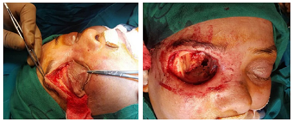 During-exenteration-of-eye.