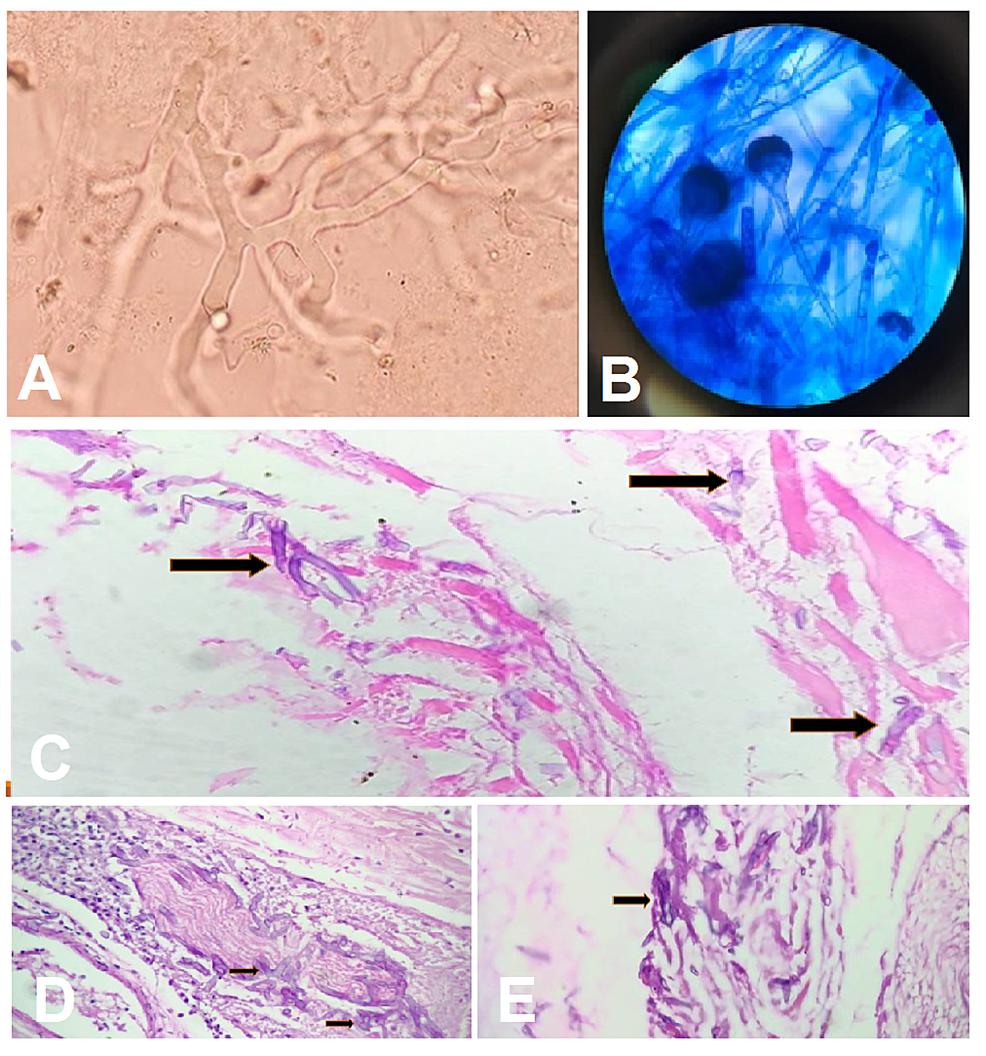 Histopathology-slides.