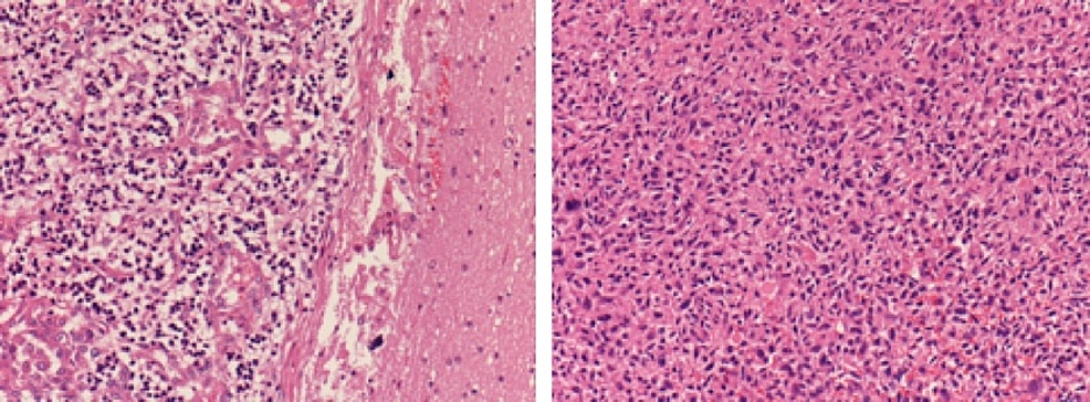 Histopathology:-H&E-200X-sections.-Brain-on-the-left-and-heart-on-the-right.