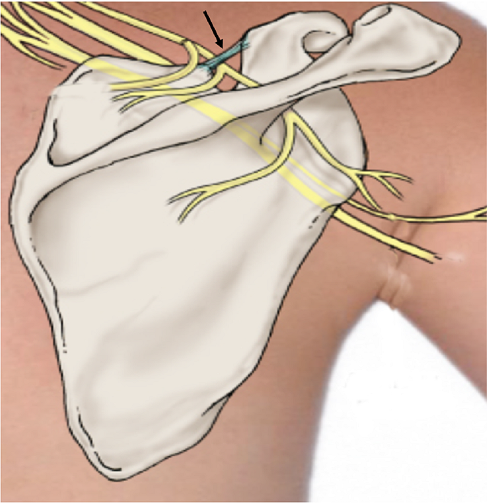 Schematic-drawing-of-the-posterior-scapula-illustrating-the-suprascapular-ligament-(arrow)
