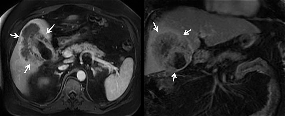 Magnetic-resonance-imaging-(MRI)-of-the-liver-showing-mass-in-relation-(arrows)-to-portal-vessels.