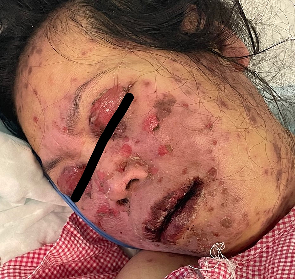 Overall-image-of-the-face-before-initiating-treatment