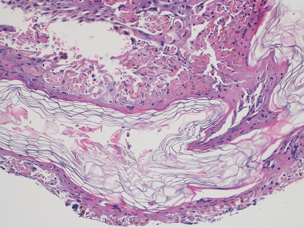 Biopsy-before-initiating-the-treatment
