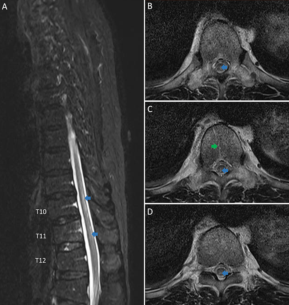 The-T2-weighted-magnetic-resonance-imaging-of-thoracic-spine-is-shown,-three-days-after-symptoms-onset.-A:-the-sagittal-image-and-B,-C,-D:-the-axial-images-showing-hyperintensity-in-the-posterior-and-posterior-central-aspects-of-the-thoracic-spinal-cord-(blue-arrows)-and-T2-weighted-hyperintensity-with-enhancement-is-seen-affecting-T11-vertebra-(green-arrows).
