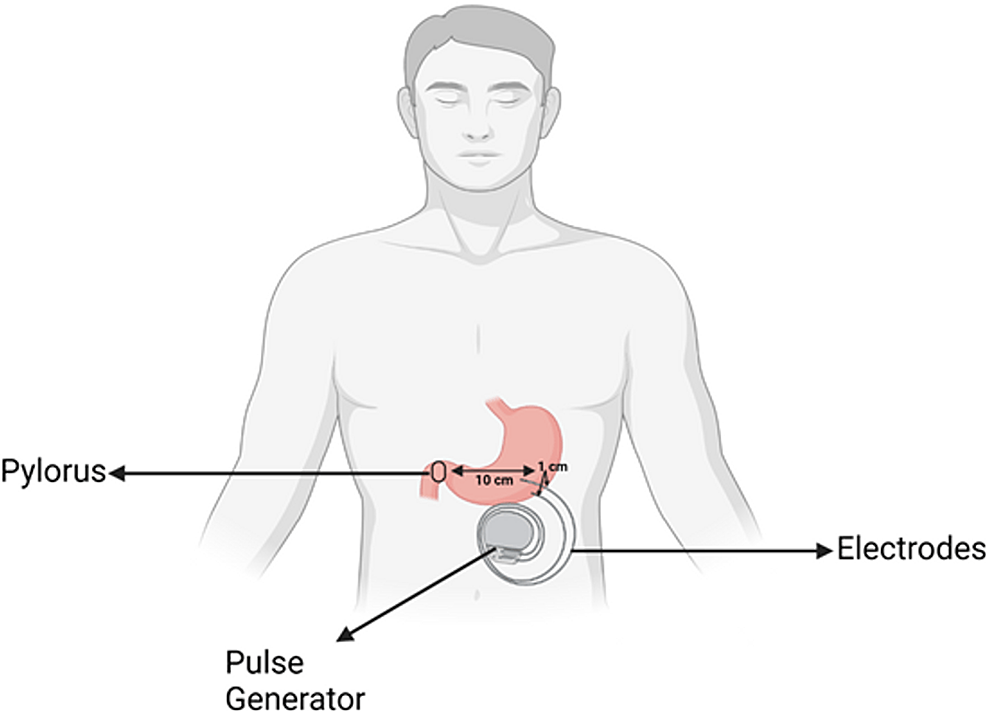 Positioning-of-gastric-pacemaker-in-relation-to-the-greater-curvature-and-pylorus-of-the-stomach