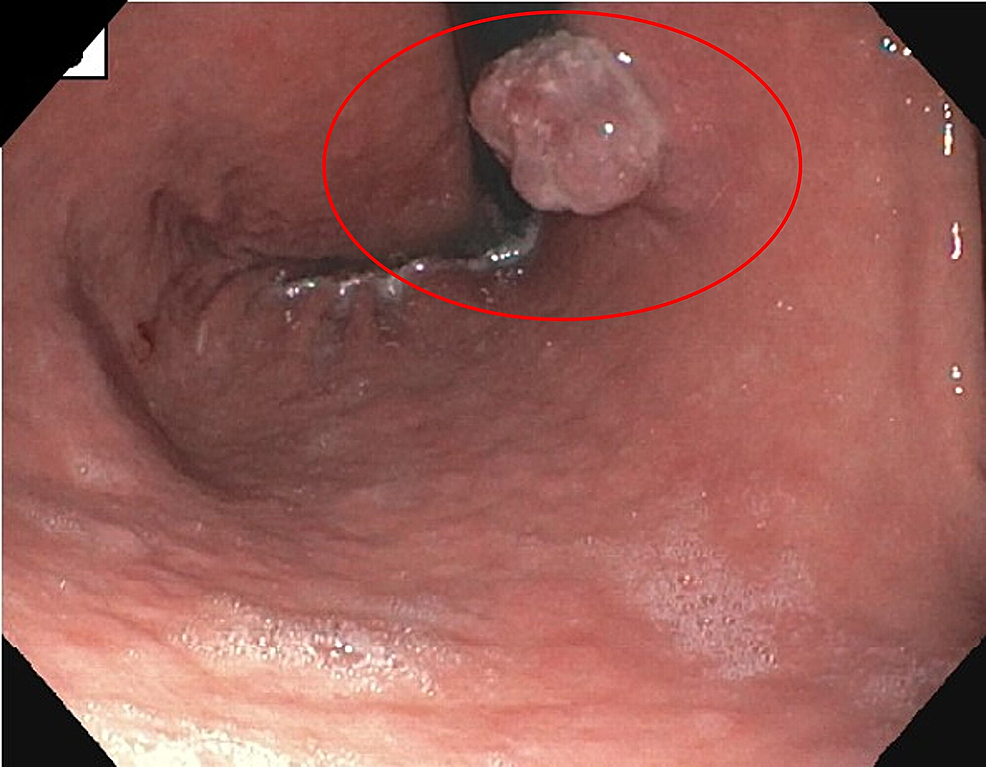 A-2.5-cm-polypoid-lesion-with-a-wide-base-at-proximal-corpus-toward-lesser-curvature.