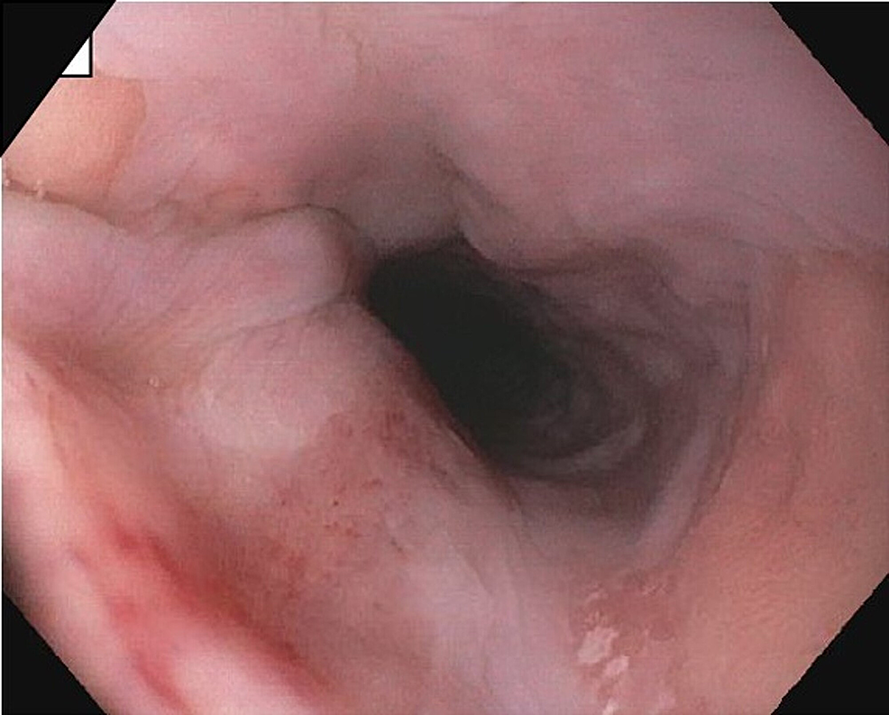 Esophageal-mucosa-without-any-masses/tumors.-Biopsies-taken-were-normal.