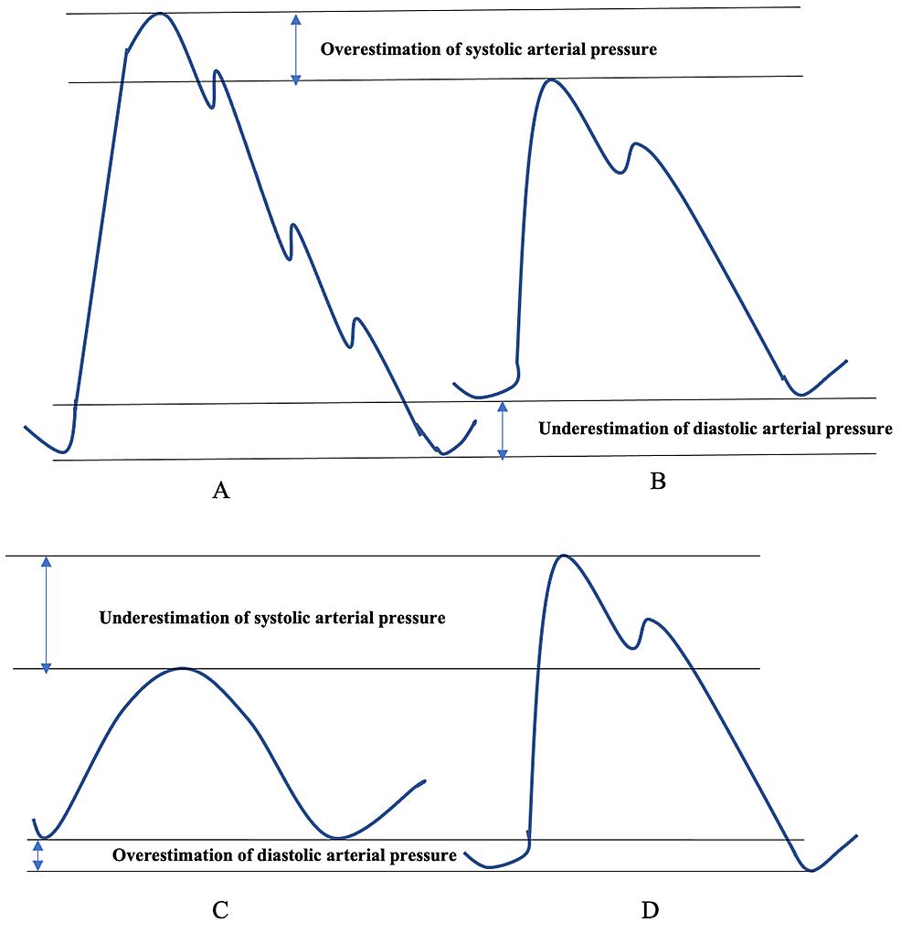 Underdamped-and-overdamped-arterial-pressure-waveforms