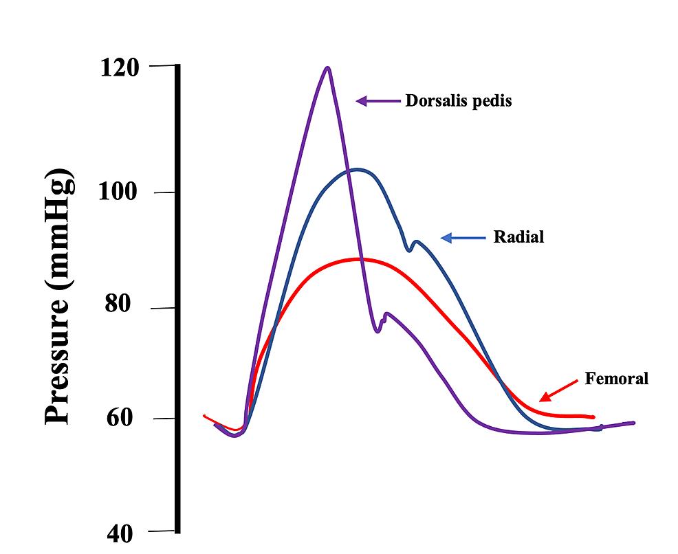 Variation-of-arterial-pressure-by-site-of-measurement