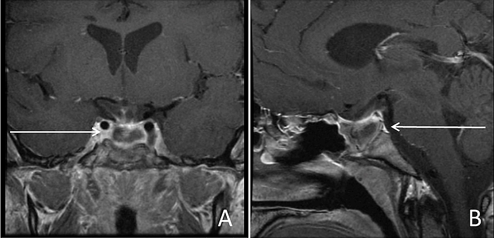 Postoperative-magnetic-resonance-imaging-(MRI)-with-contrast-demonstrating-minimal-residual-disease,-coronal-(A)-and-sagittal-(B).