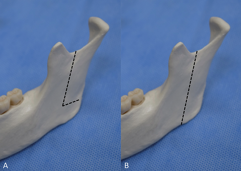 Lateral-view-of-the-osteotomy-line
