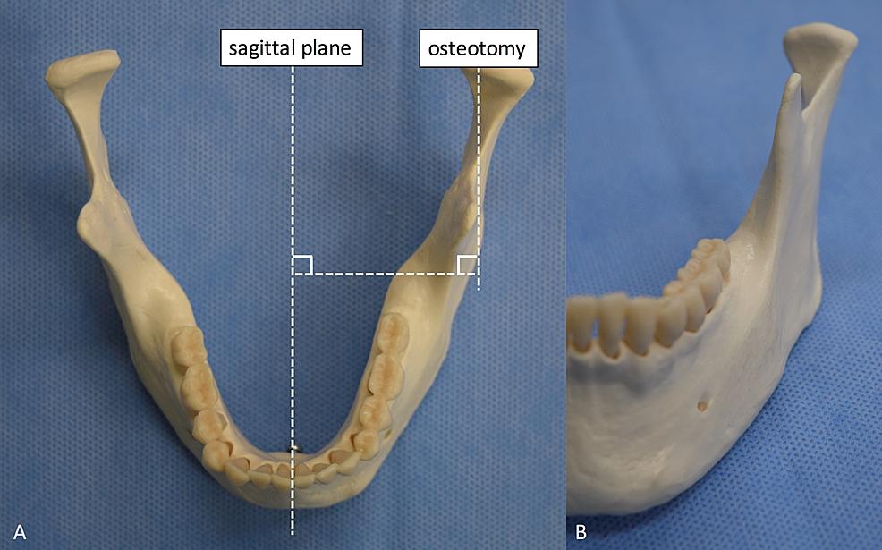 Original-sagittal-plane-and-vertico-sagittal-ramus-osteotomy-plane