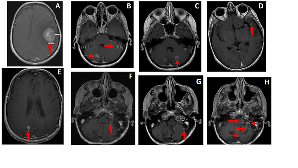 Pre-SRS-treatment-T1-weighted-post-contrast-brain-MRI-demonstrating-intracranial-metastasis