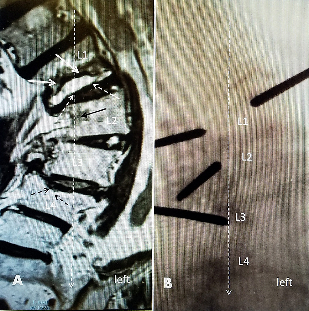A-70-year-old-female-with-pre-existing-idiopathic-scoliosis-with-a-left-convex-curve-of-50-degrees