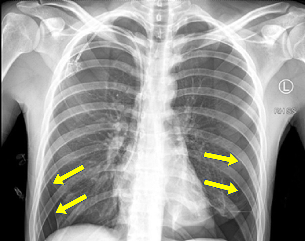 The-chest-x-ray-showing-large-bilateral-pneumothoraces.