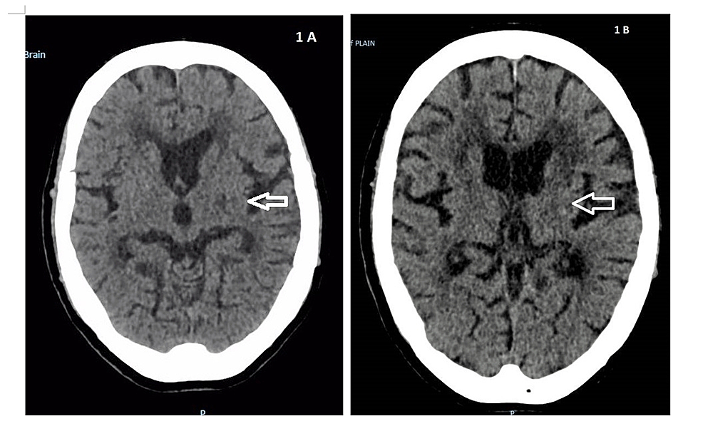 Computed-Tomography-(CT)-of-the-Brain
