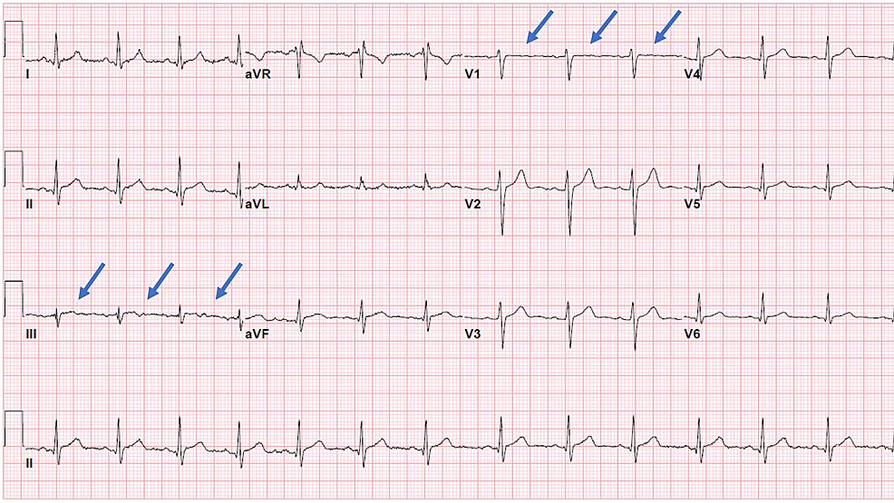 ECG-upon-admission