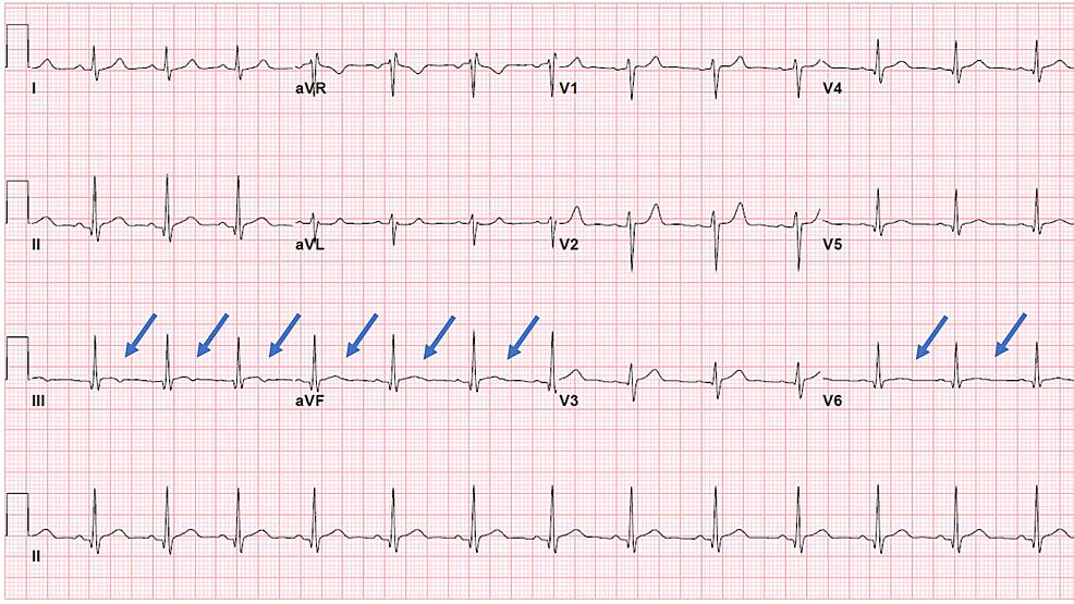 ECG-at-discharge