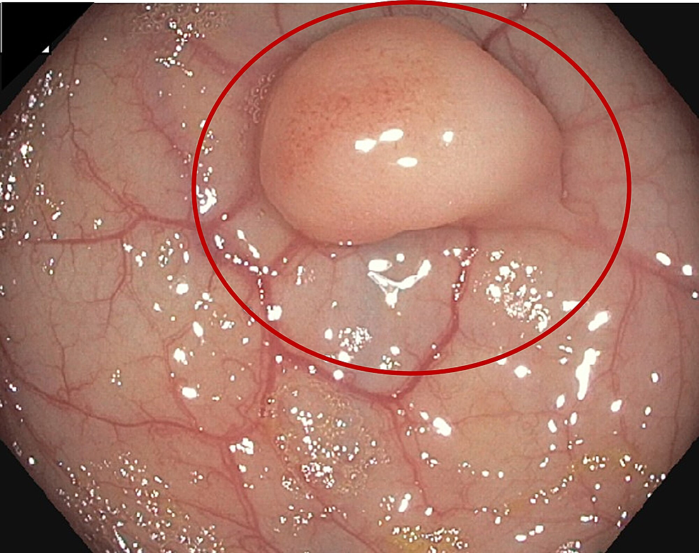Colonoscopy:-1.2-1.5-cm-polyp-found-at-45-cm-from-the-anus.