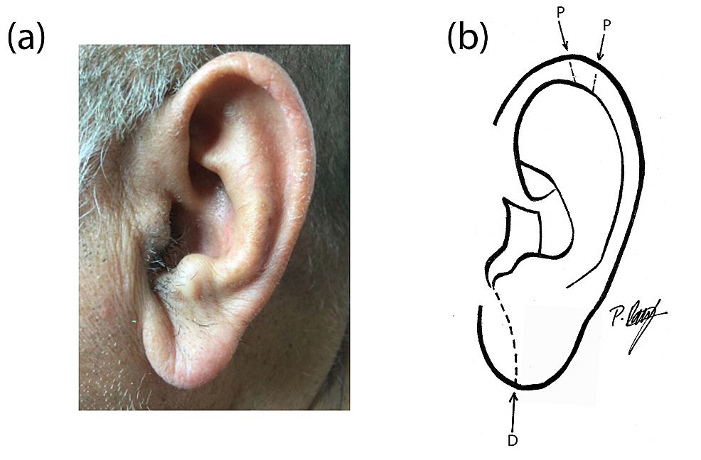 Skin In Ear Lobe Diagram - Free Vehicle Wiring Diagrams •