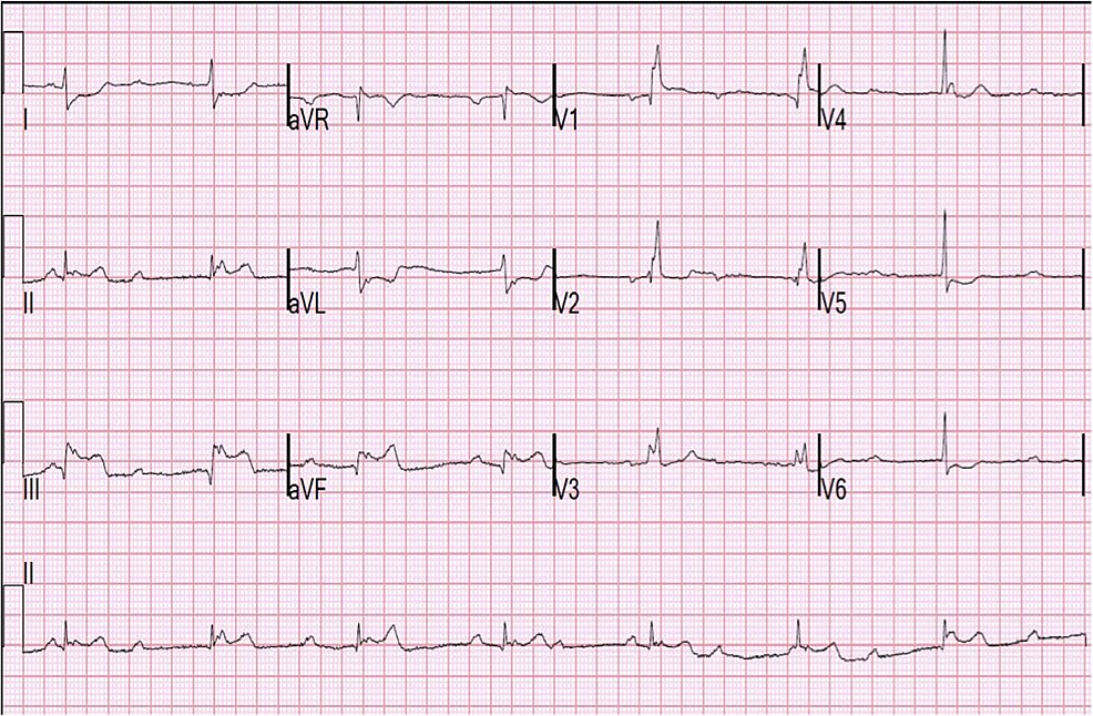 Electrocardiogram-(EKG)-showing-complete-heart-block,-junctional-escape-and-inferior-lead-ST-elevations