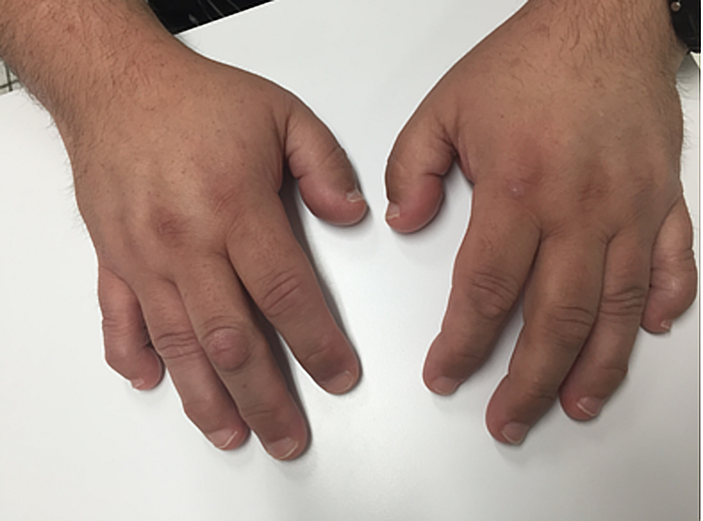 Brachydactyly-of-the-hands