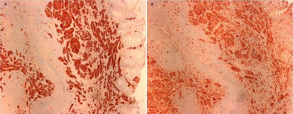 Histopathology-of-nodule