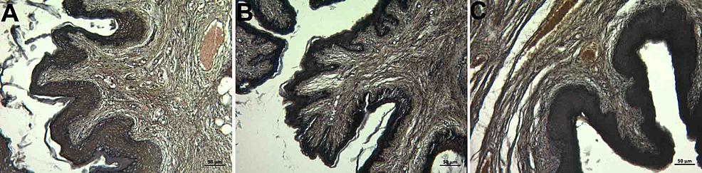 Histopathological-examination-of-the-lamina-propria