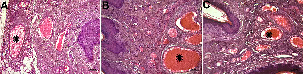 Histopathological-examination-of-vessels