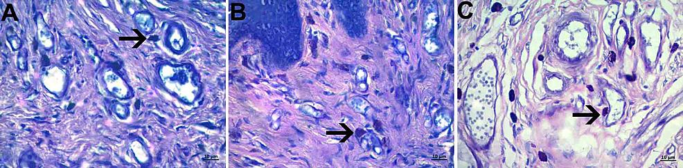 Mast-cell-density