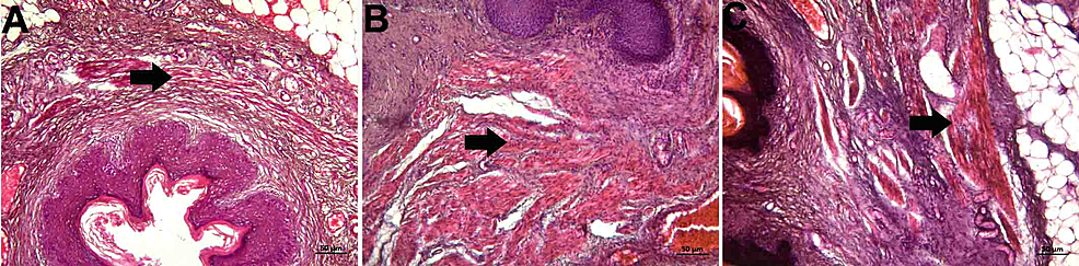 Histopathological-examination-of-the-muscular-layer