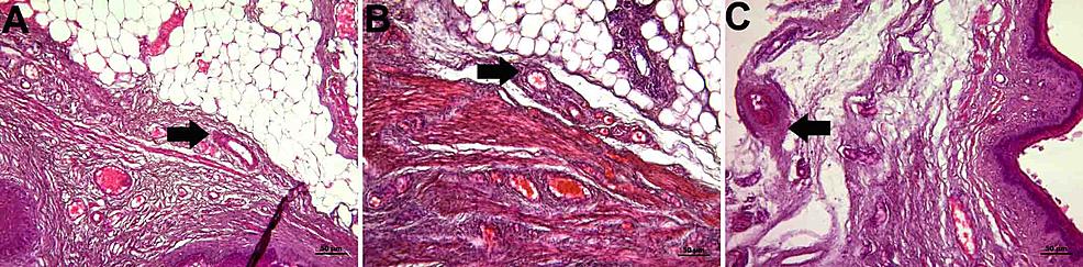 Histopathological-examination-of-the-adventitia