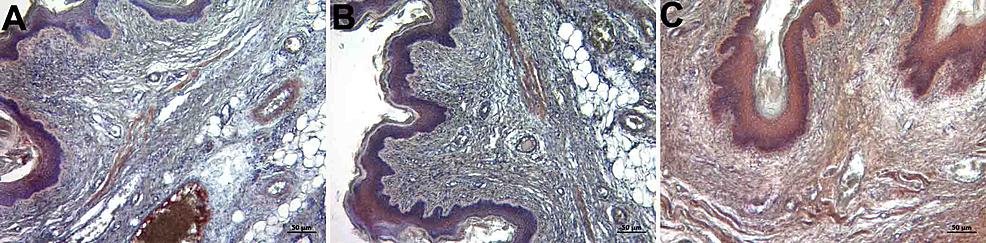 Immunohistochemistry-staining-with-fibrillin-1