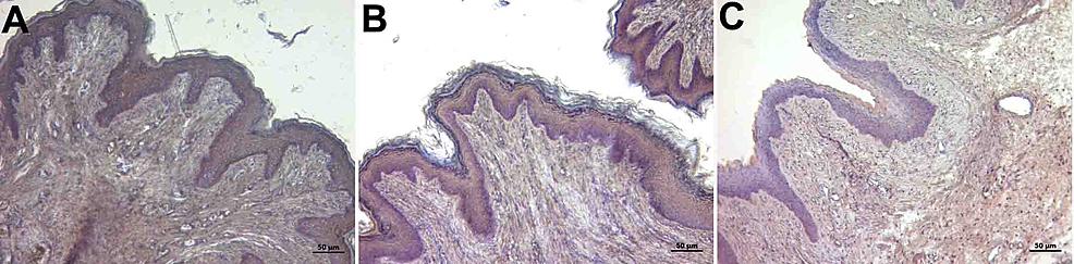 Immunohistochemistry-staining-with-caspase-3