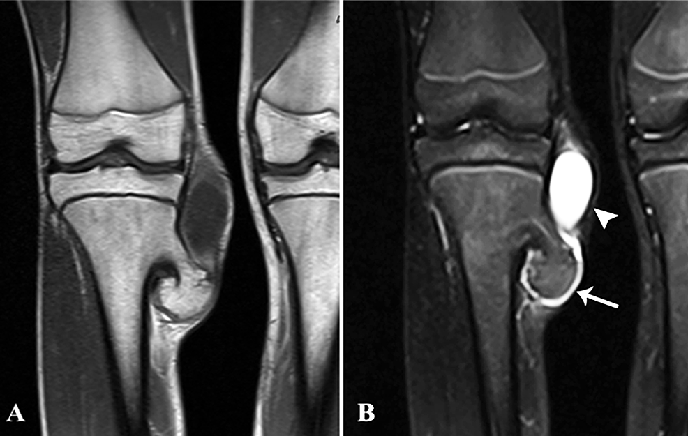 A-&-B:-Coronal-T1-post-contrast-and-STIR-MR-images