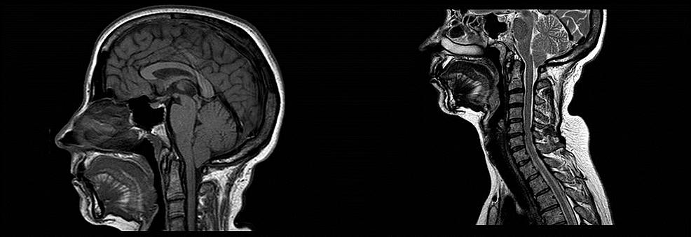 Brain-MRI-showing-Chiari-I-malformation