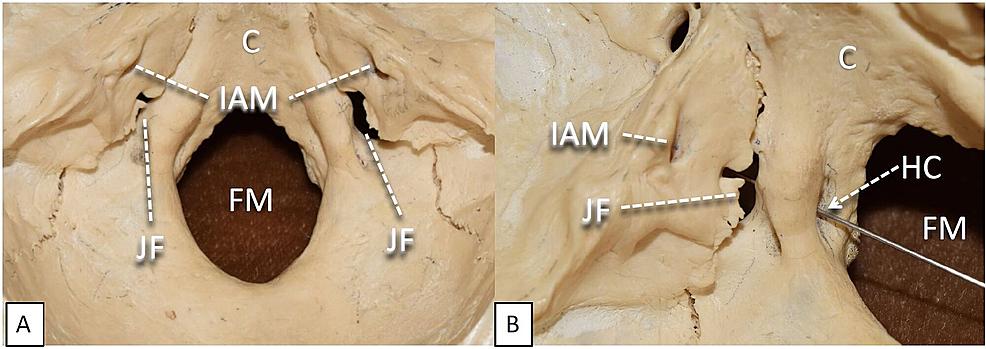 Cureus   Cranial Nerve Foramina: Part II – A Review of the Anatomy ...