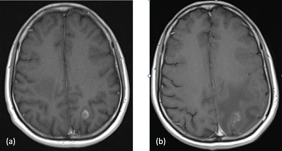 MRI-head-with-a-change-in-the-left-parietal-lesion