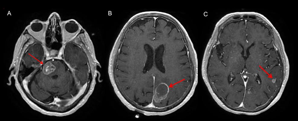 Representative-MRI-images-at-diagnosis,-showing-three-brain-lesions