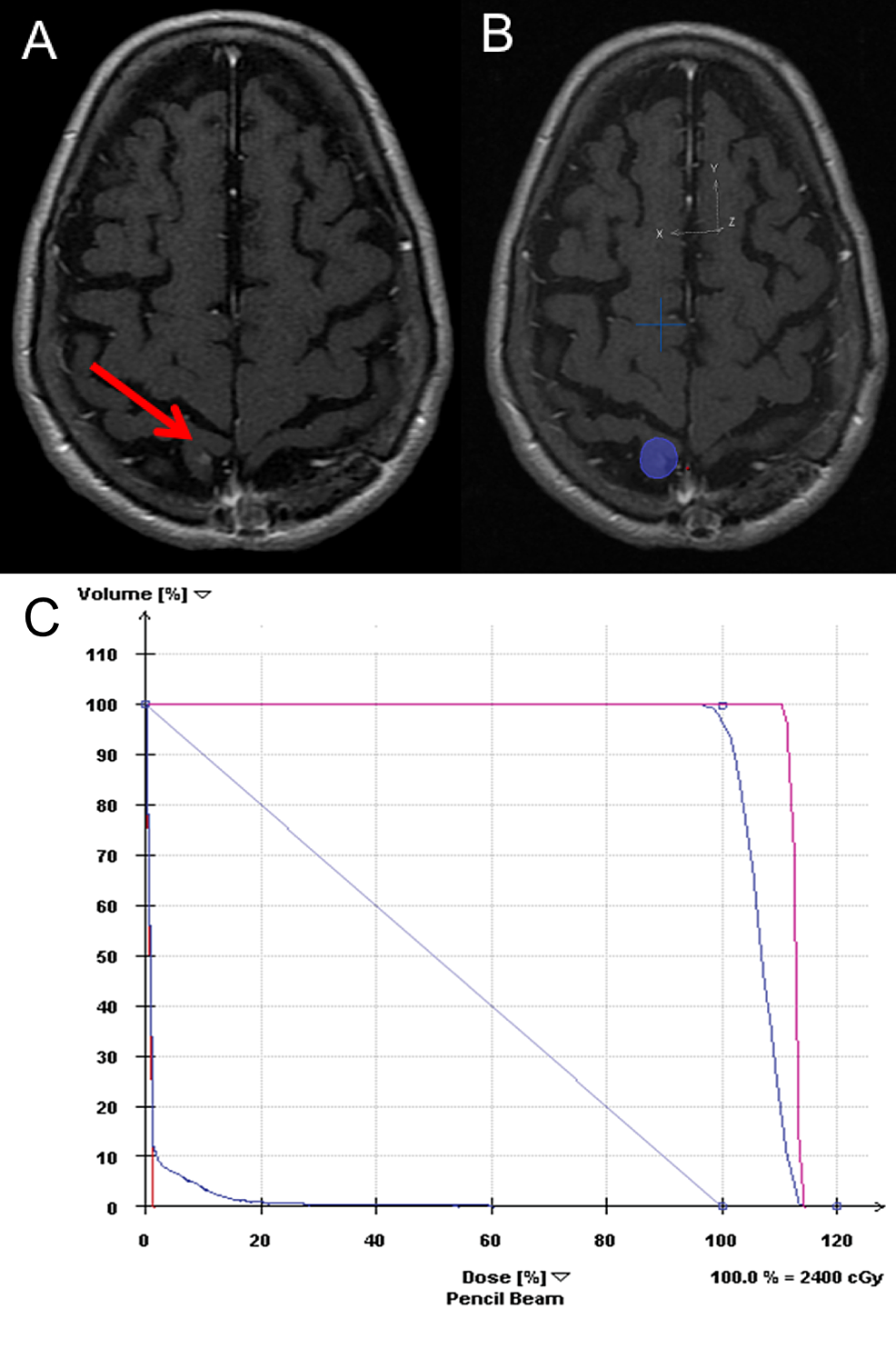New-postcentral-gyrus-lesion-1-year-following-initial-treatment