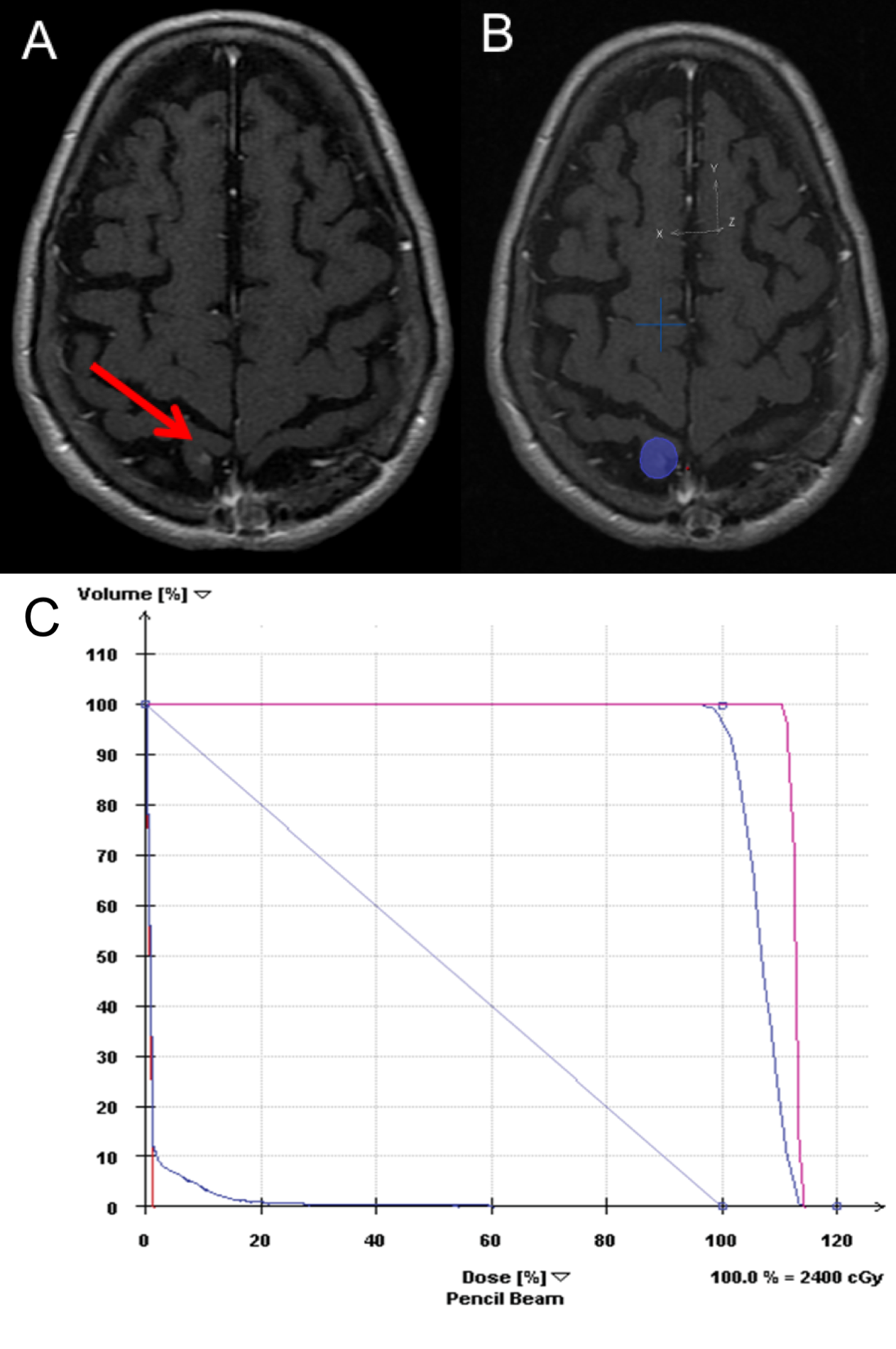 Cureus Excellent Outcomes In A Geriatric Patient With Multiple Brain Metastases Undergoing Surgical Resection With Cesium 131 Implantation And Stereotactic Radiosurgery A gyrus of the parietal lobe located just posterior to the central sulcus, lying parallel to the precentral gyrus of the temporal lobe, and comprising the somatosensory. doi org