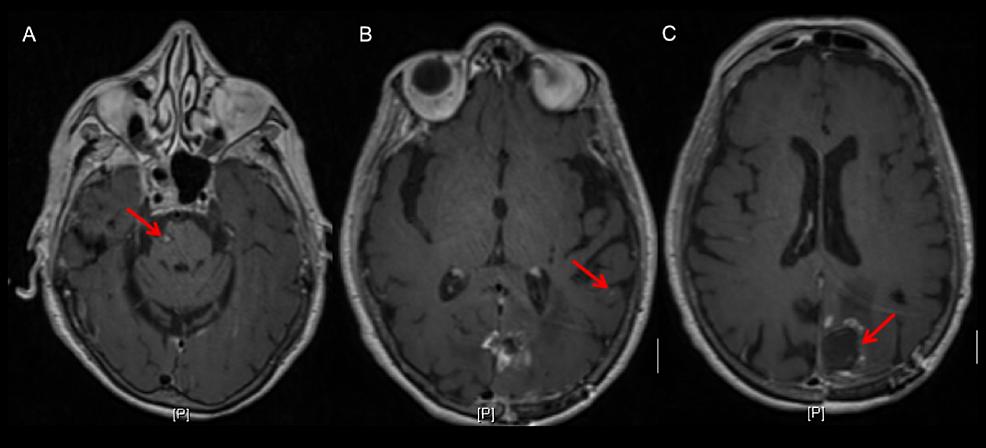 Representative-MRI-images-at-patient's-last-follow-up