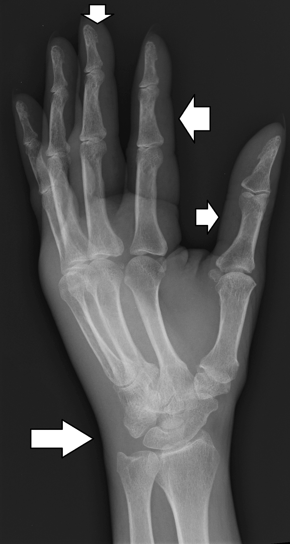 X-ray-of-the-wrist-joint-showing-soft-tissue-swelling-in-the-hand-and-at-the-wrist-joint