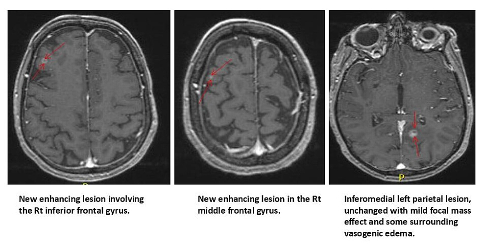 Follow-up-MRI-brain-with-new-metastases-and-old-lesion.