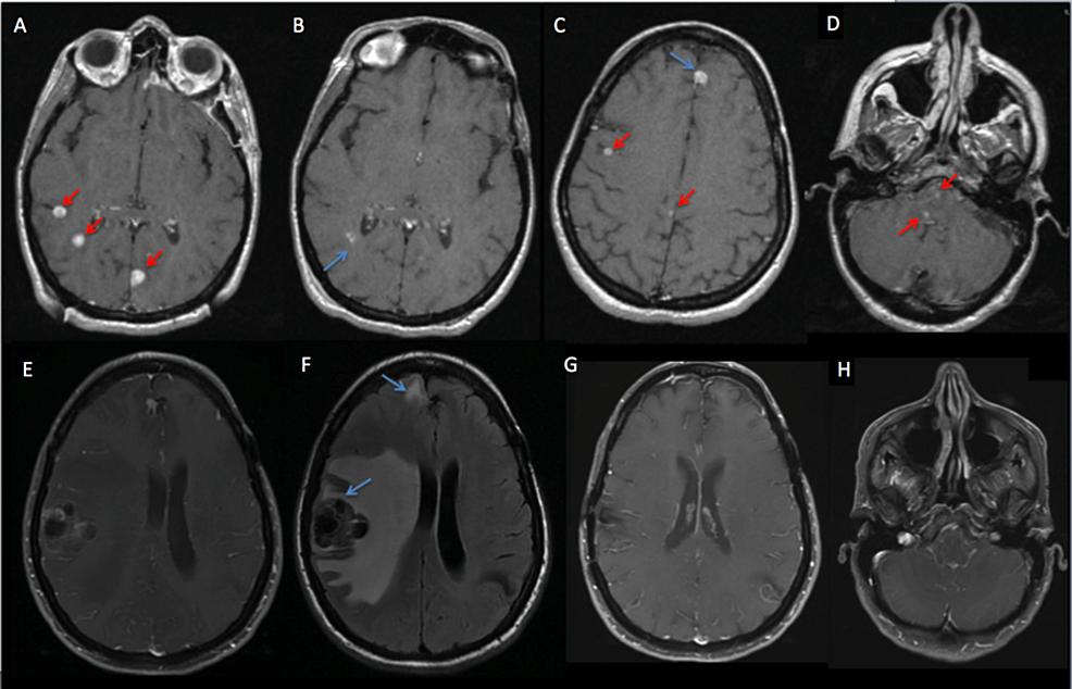 Patient-MK---MRI-of-the-brain.
