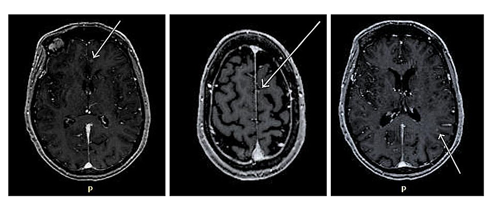Follow-up-MRI-of-the-brain-showing-new-punctate-enhancement-in-the-left-frontal-and-parietal-region.