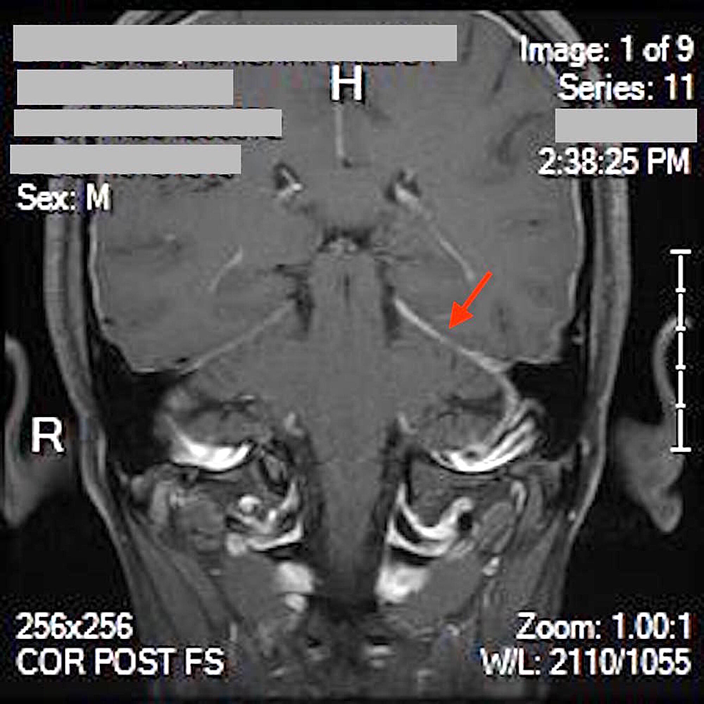 MRI-brain-without-contrast,-showing-asymmetric-tentorial-enhancement-(red-arrow)